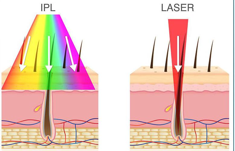 تفاوت ipl با لیزر در لیزر موهای زائد