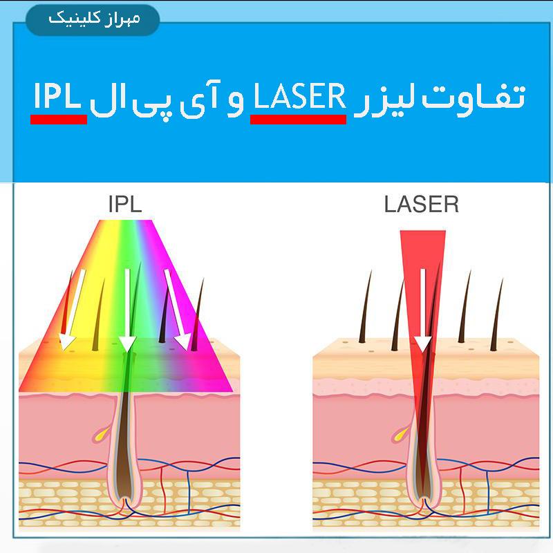 آیا تفاوت لیزر و ipl را در لیزر موهای زائد میدانید ؟