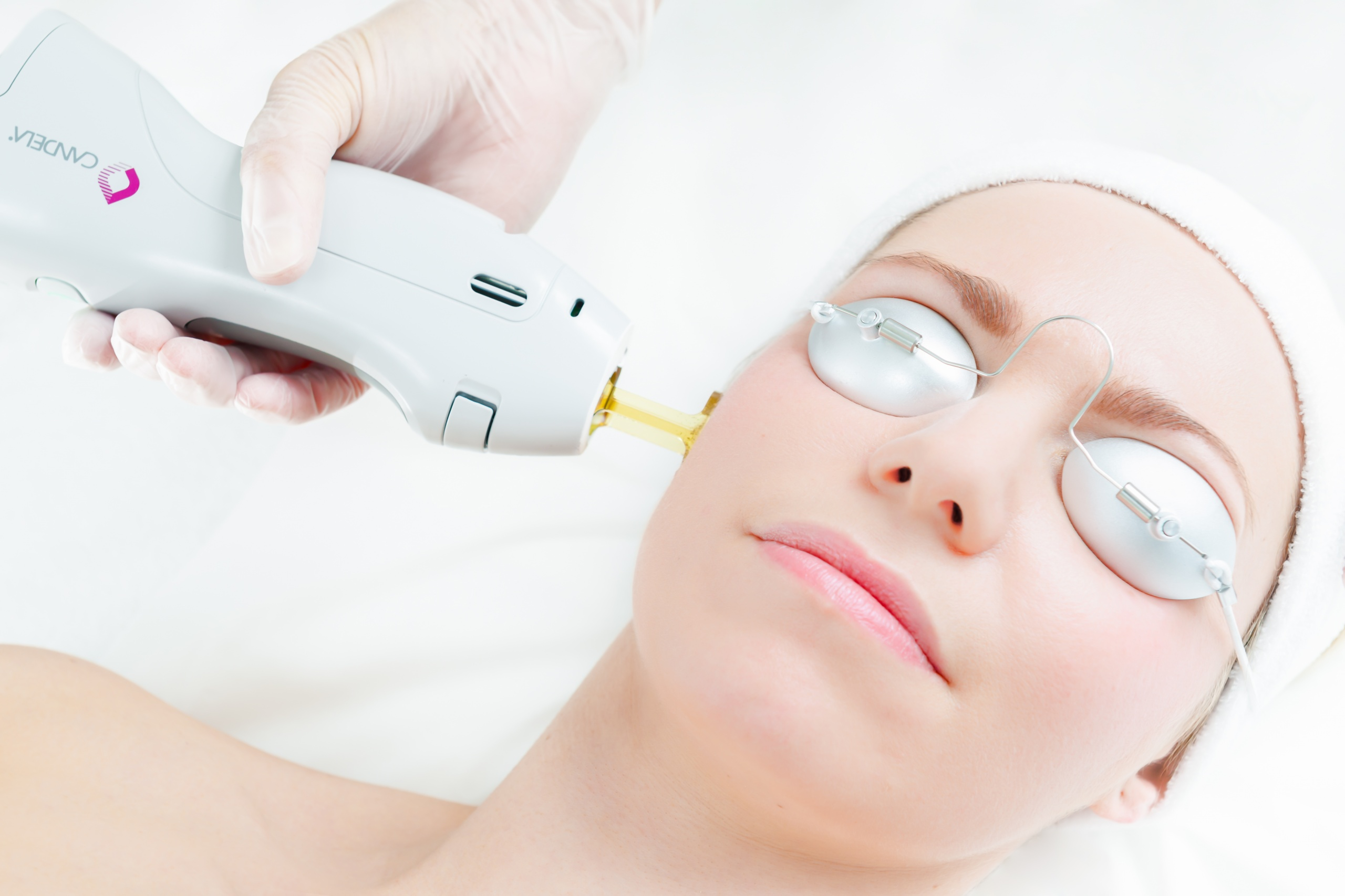 بررسی نکات مهم بعد از انجام لیزر موهای زائد در کلینیک زیبایی مهراز