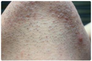 قبل از درمان موهای زائد زیر چانه در کلینیک زیبایی مهراز