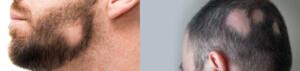 •ریزش موی آره آتا (Areata Alopecia) » سکه ای یا منطقه ای: