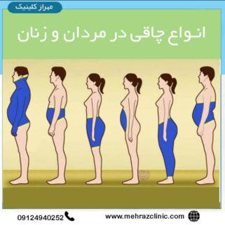 انواع چاقی در مردان و زنان