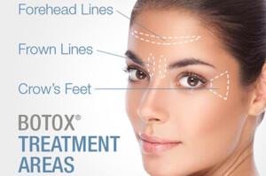کاربرد بوتاکس در پوست و زیبایی چیست؟