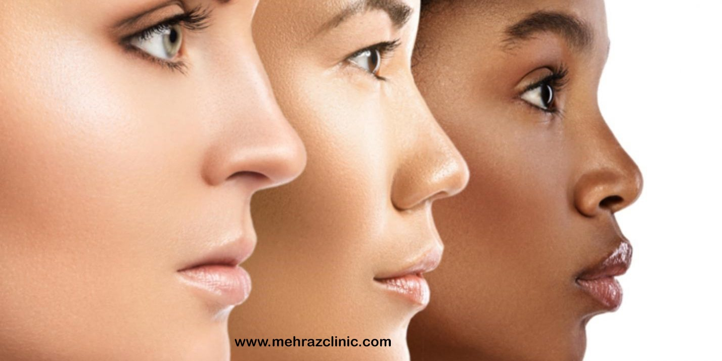 لیزر برای انواع تایپ پوستی