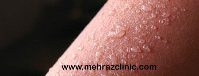 تاول زدن پوست بعد از لیزر