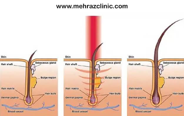 سیکل و دوره درمان لیزر موهای زائد
