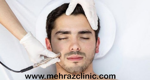 آیا لیزر موی آقایان خطرناک است؟