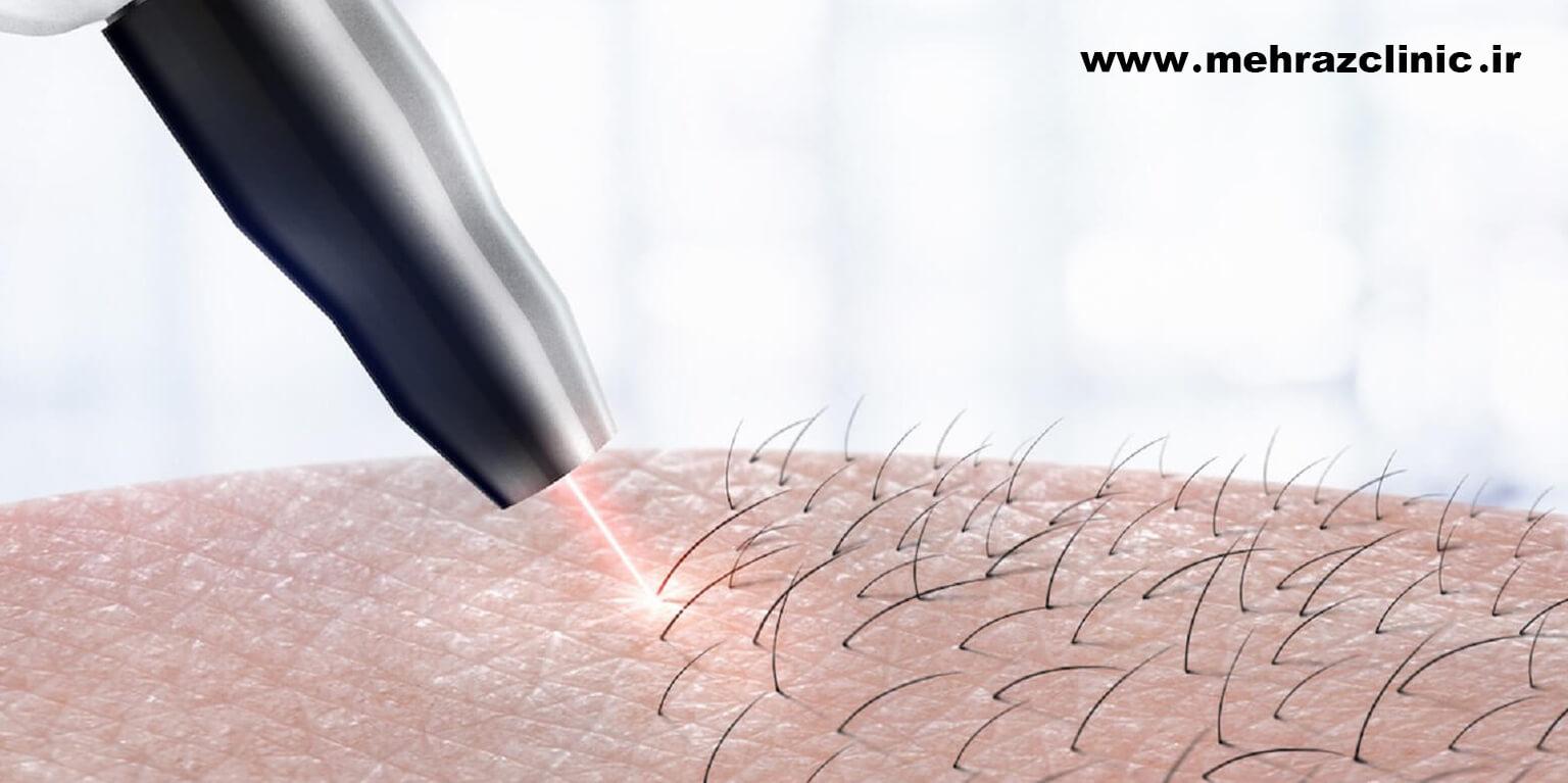 علائم سوختگی با لیزر