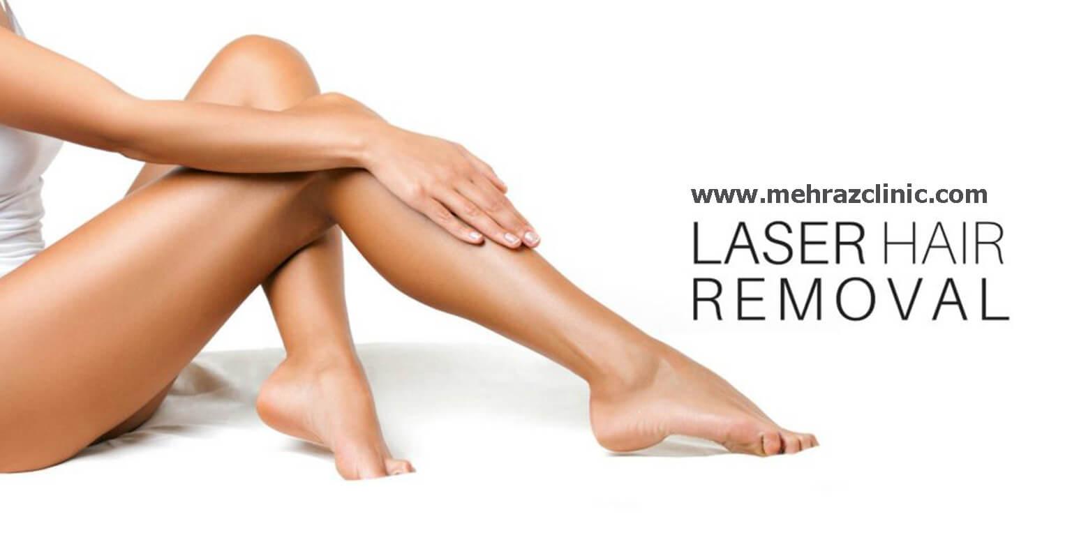 درمان واریس پا با دستگاه لیزر