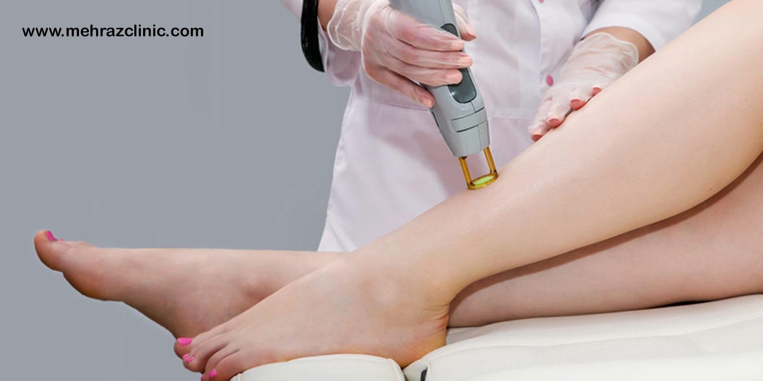 درمان واریز پا با لیزر به چه نحوی است