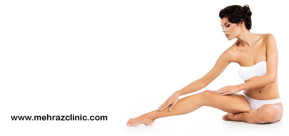 تیرگی پوست بعد از لیزر
