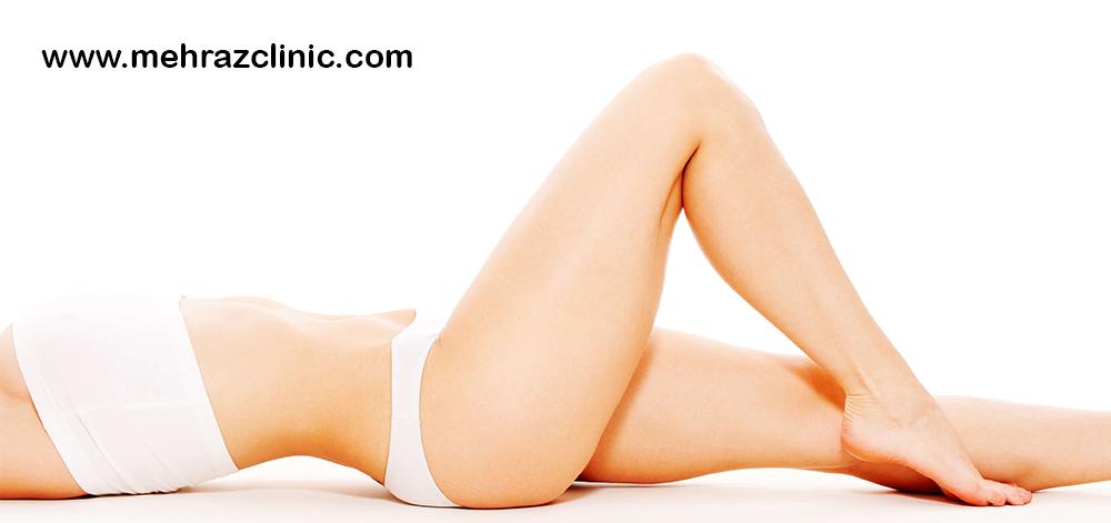 لیزر برای درمان لکه های پوستی