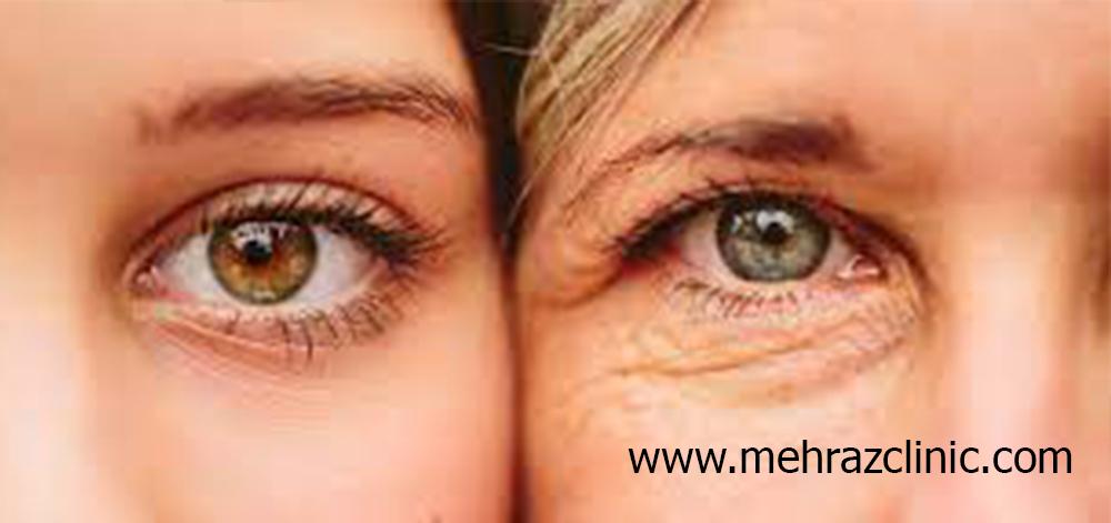 راهکارهای درمان خطوط دور چشم