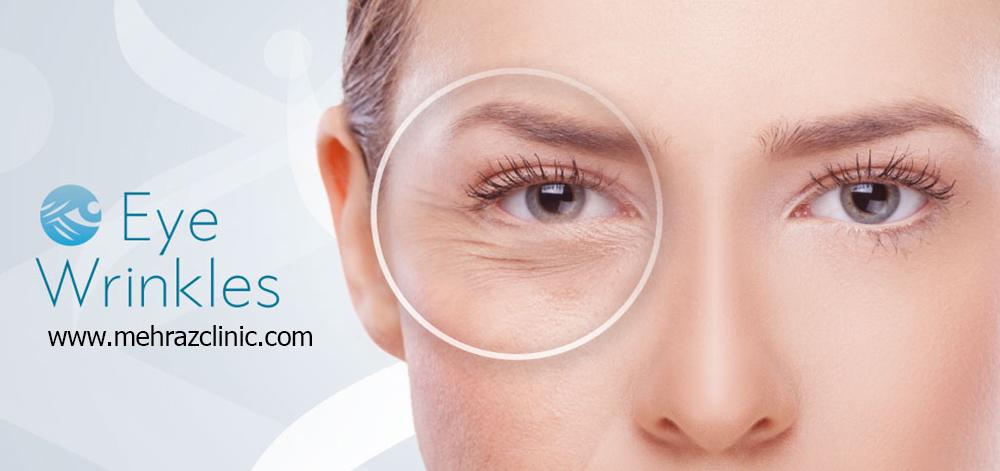درمان چروک دور چشم با لیزر